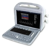 Ultrasound Scanner AR580A (portable color doppler)